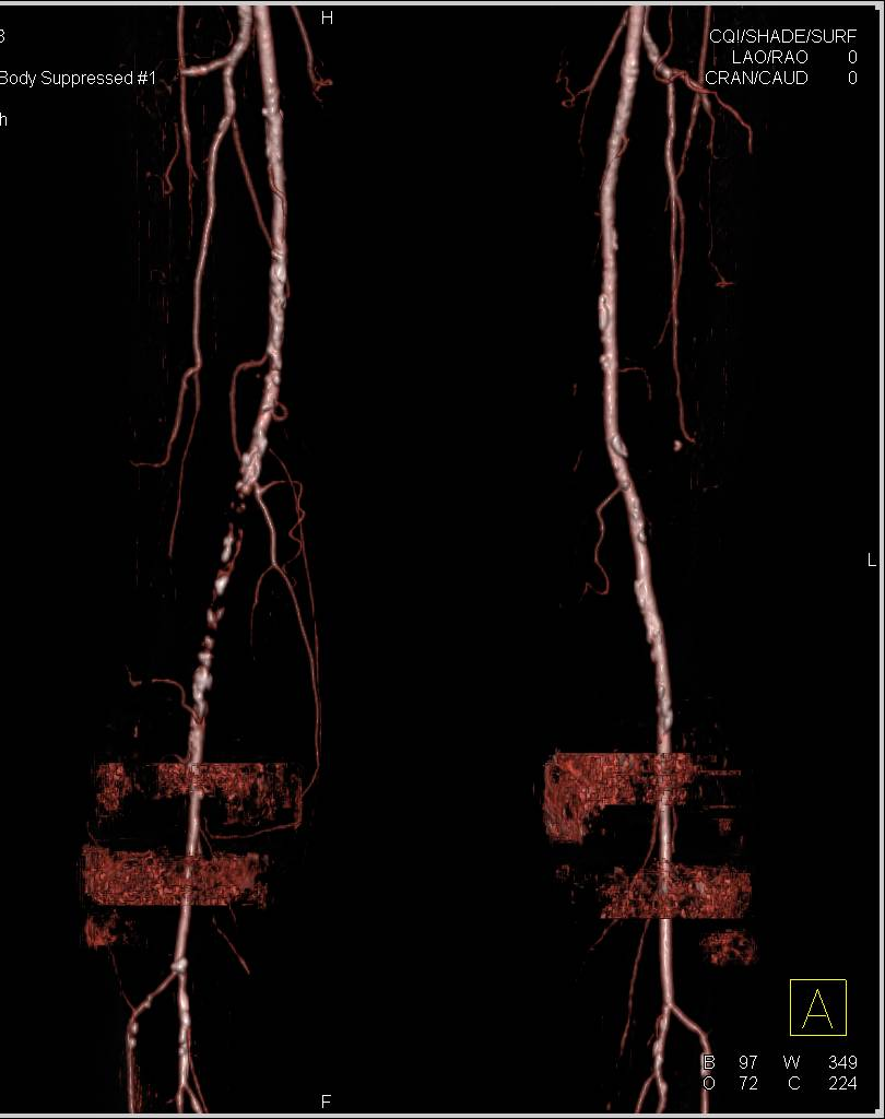 Peripheral Vascular Disease with Occlusion in Right SFA Seen Nicely on CTA