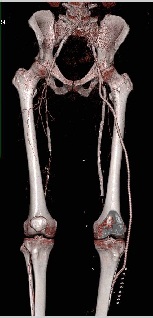 CTA Runoff Lower Extremities with Multiple Stents - Vascular Case ...
