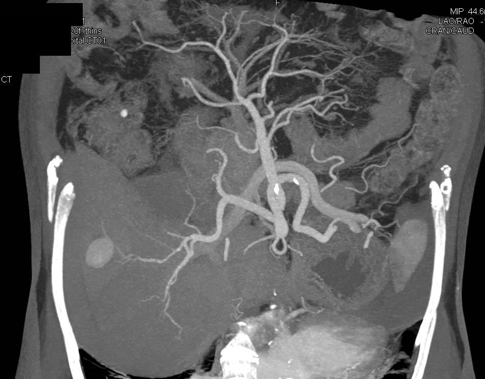 Hepatic Artery Pseudoaneurysm - Vascular Case Studies - CTisus CT ...