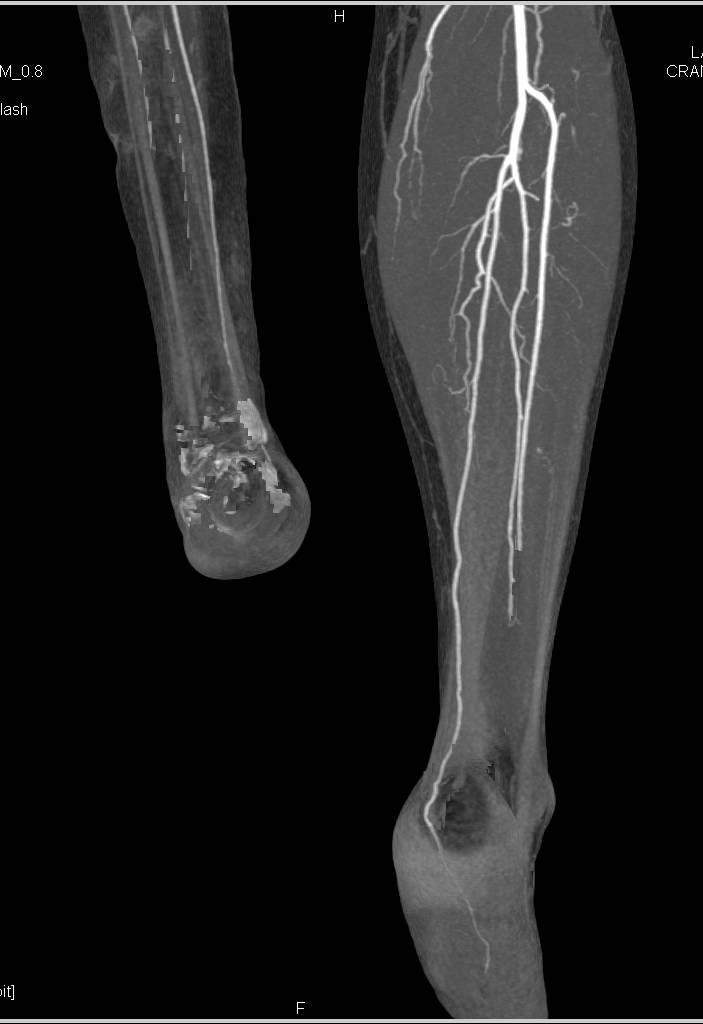 CTA Runoff in Patient with Reimplanted Lower Extremity - Vascular ...