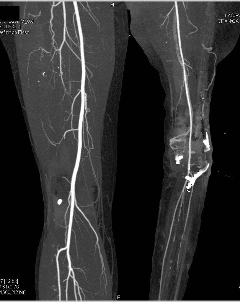CTA Runoff In Patient With Reimplanted Lower Extremity   CTisus CT Scanning