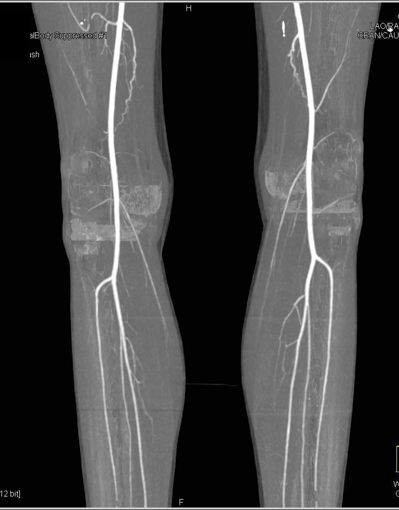 Cta Runoff With Flow Thru Posterior Tibial Arteries Vascular Case