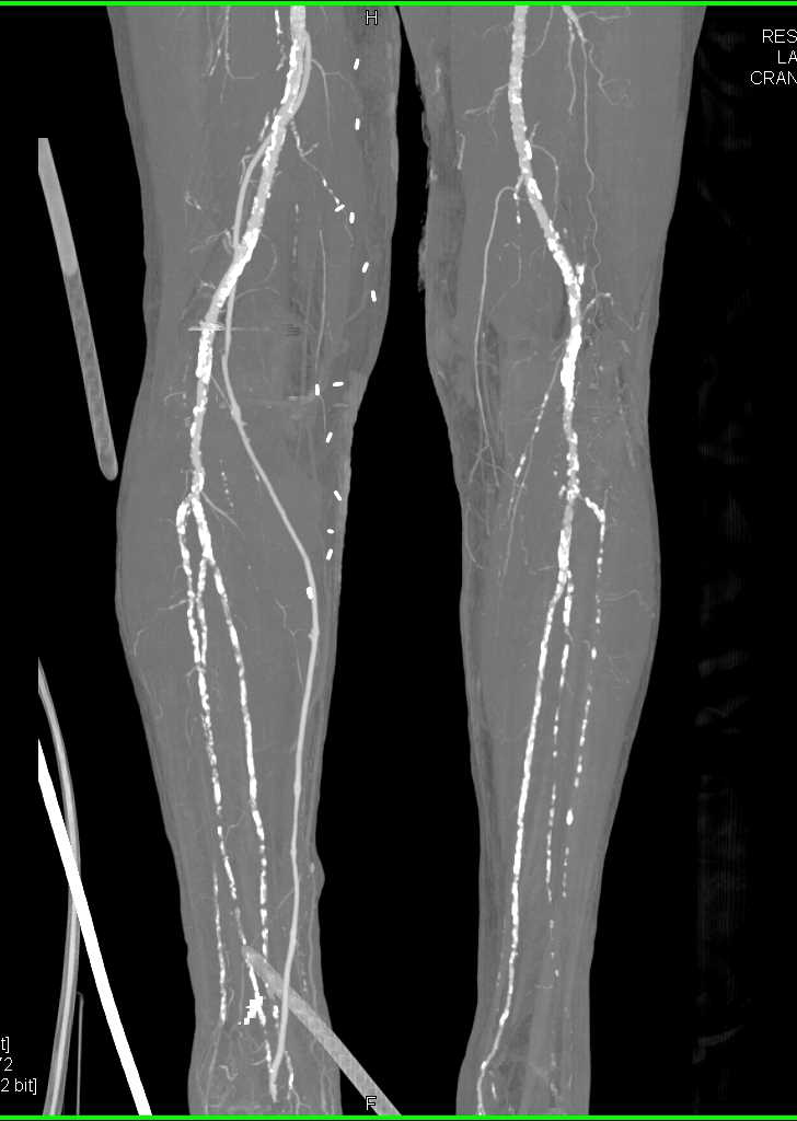 CTA Runoff with Severe Peripheral Vascular Disease