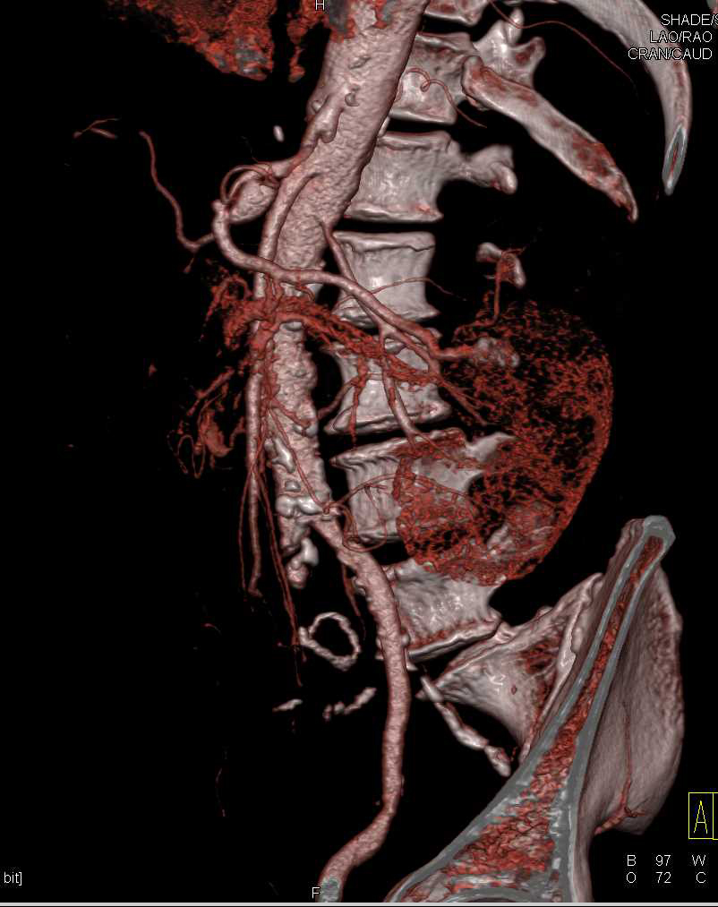 Celiac Artery Aneurysm with Dissection
