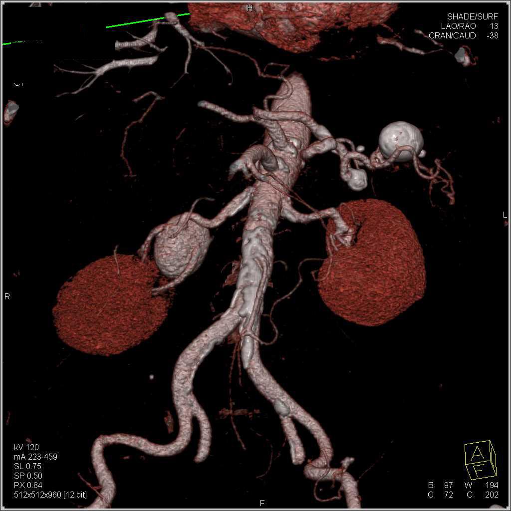 Aneurysm of the spleen for Aneurysm of the spleen