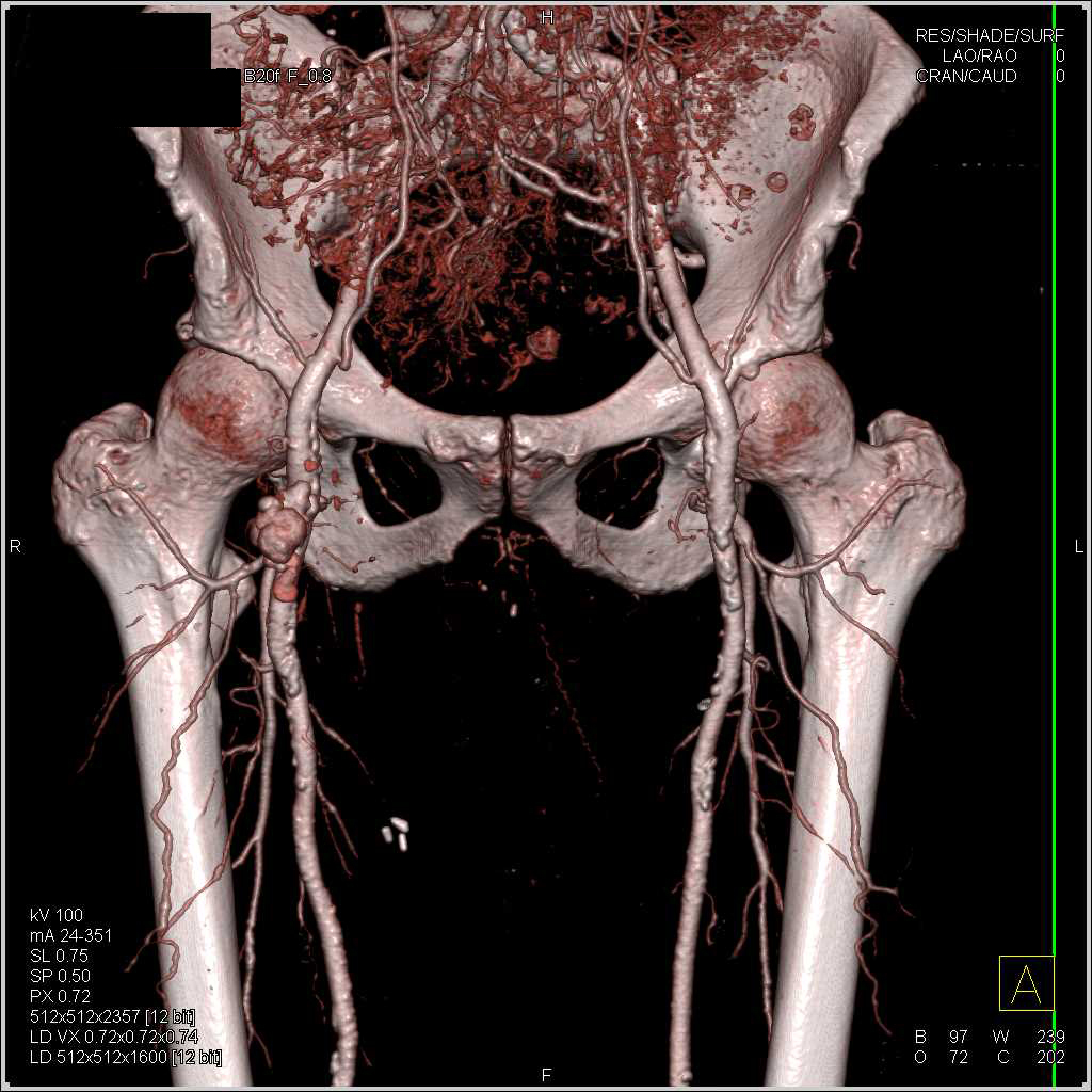 Pseudo-Aneurysm Of The Femoral Artery
