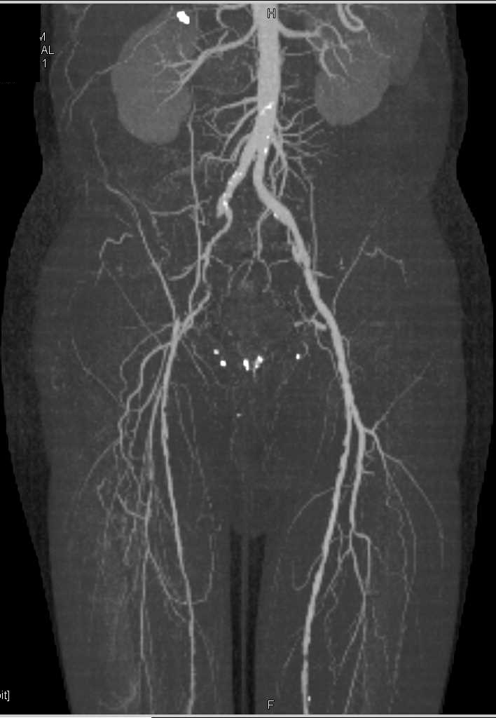 Cta Runoff With Occluded Right Superficial Femoral Artery Sfa And