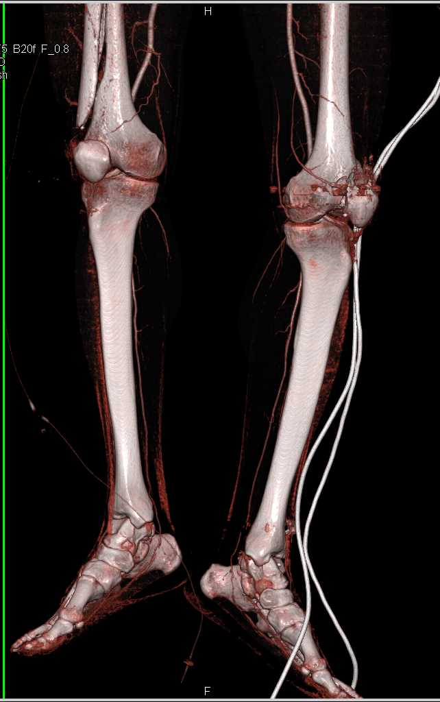 Femur Fractures Without Vascular Injury as Shown by Dual Energy Datasets