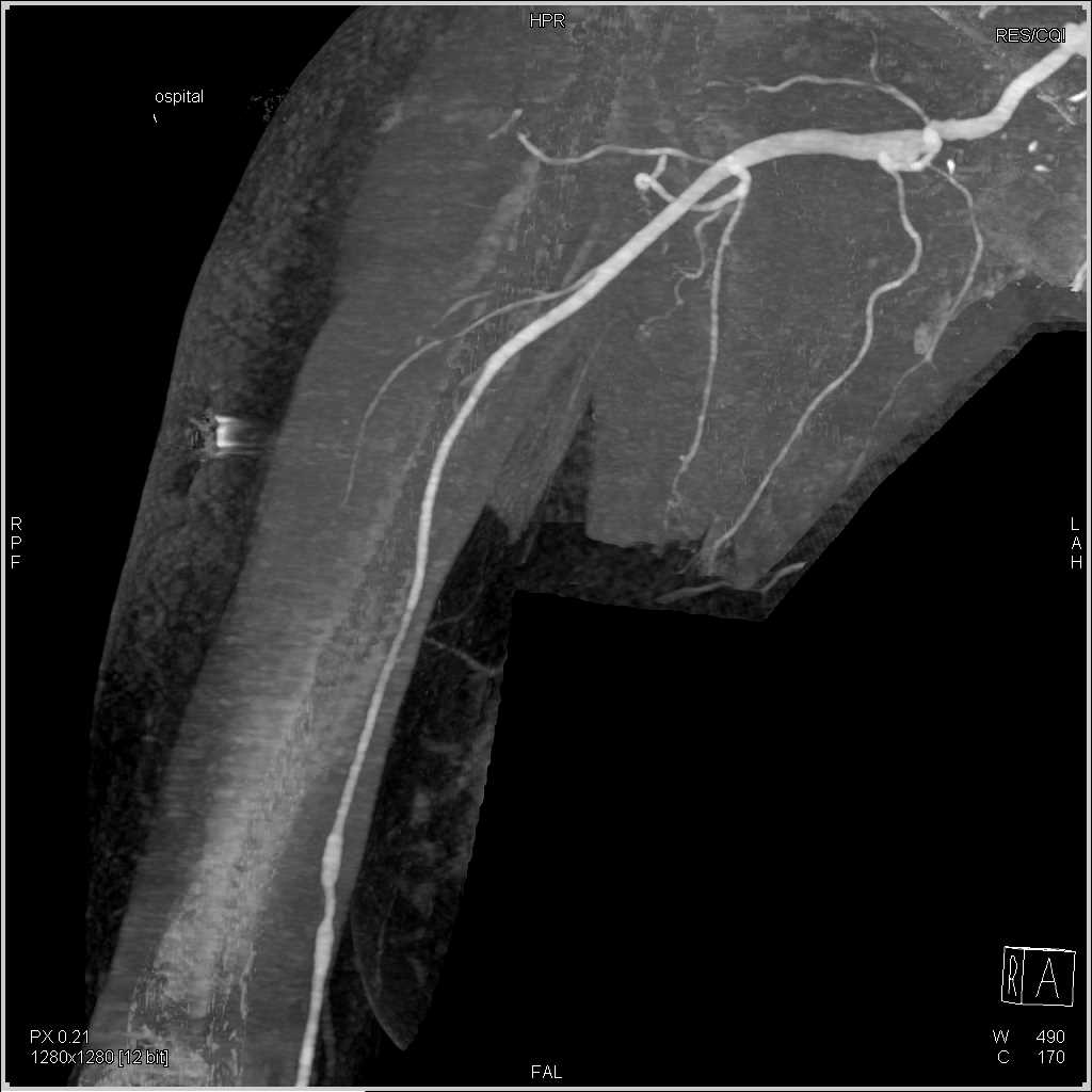 Focal Narrowing in the Right Subclavian Artery