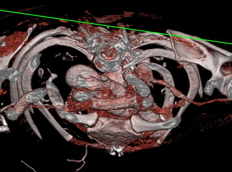 Ectatic Arch Vessels in Loeys Dietz Syndrome - CTisus CT Scanning