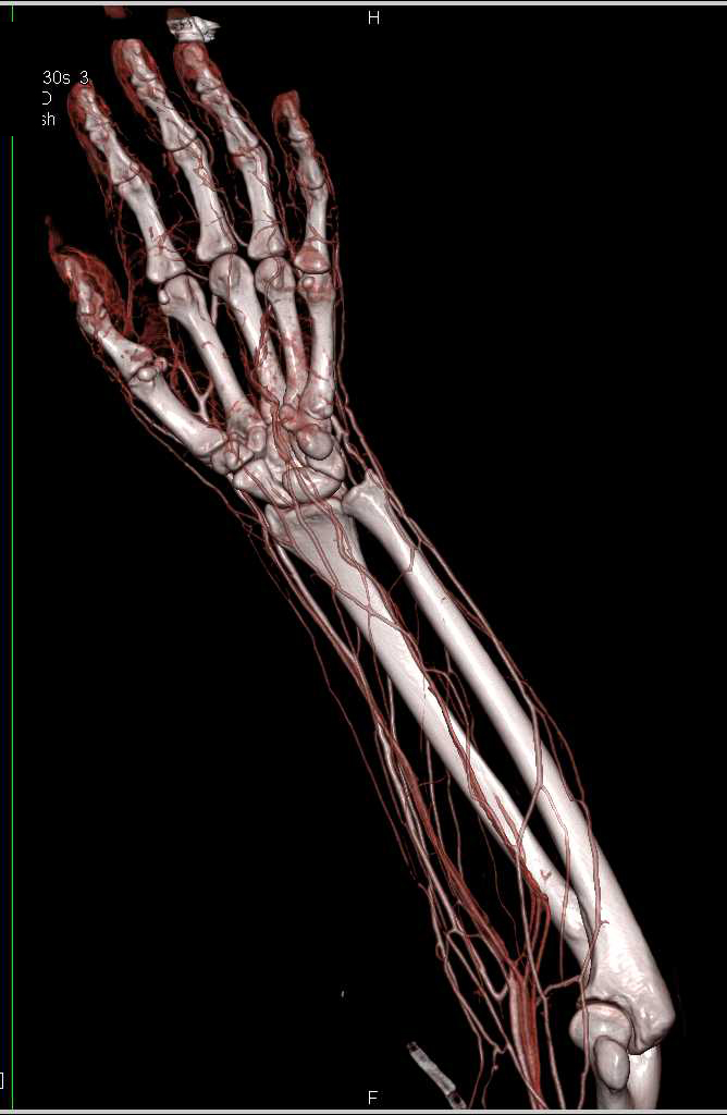 CTA Mapping of the Wrist and Hand - CTisus CT Scanning