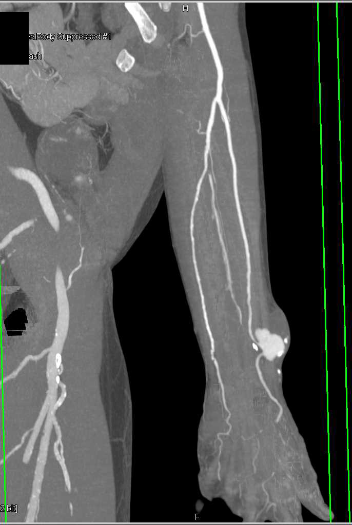 Post Traumatic Vascular Malformation - CTisus CT Scanning