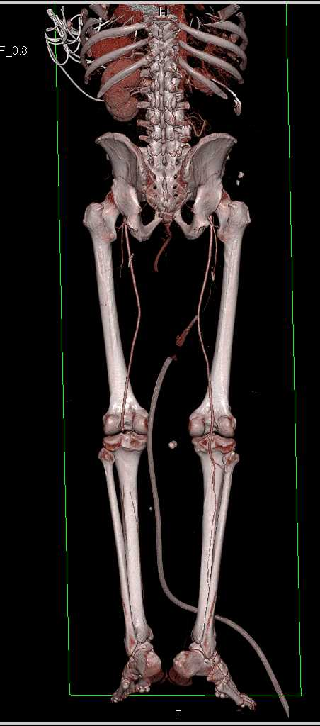 Occluded Left Popliteal Artery by Clot in Patient with Multiple Pulmonary Emboli as Well - CTisus CT Scanning