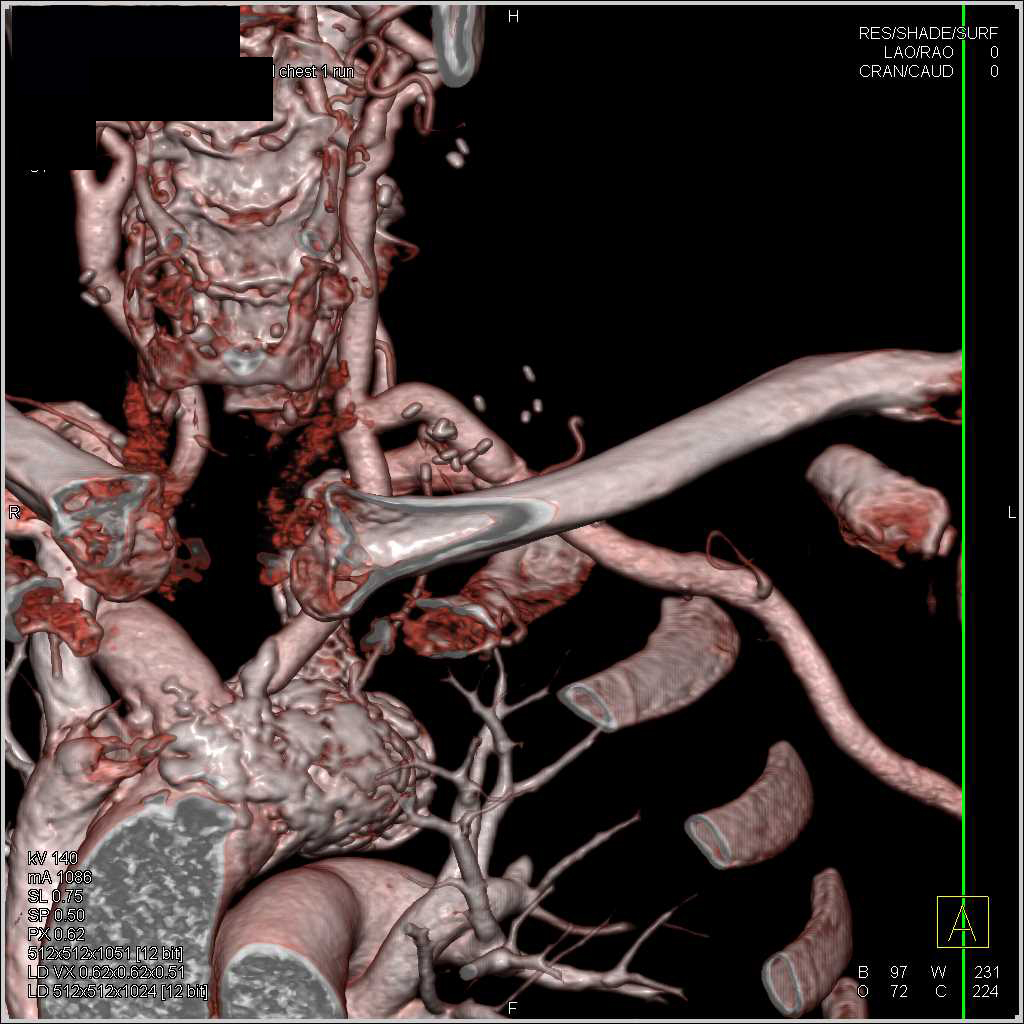 Occlusion Left Subclavian Artery with Bypass from the Left Carotid Artery - CTisus CT Scanning