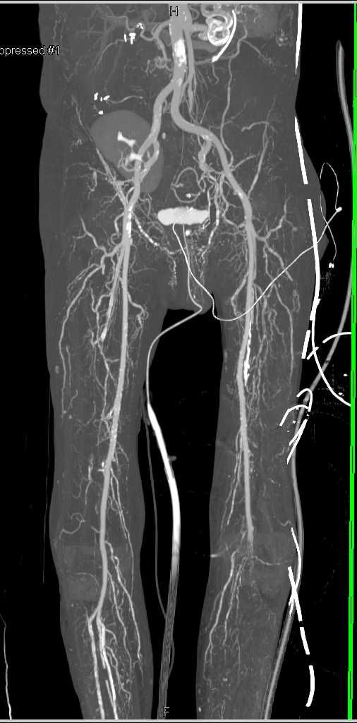 peripheral artery disease outline Peripheral artery disease (pad) is atherosclerosis that occurs in the extremities, usually in your legs it reduces blood flow to your legs, as well as to your heart and brain.