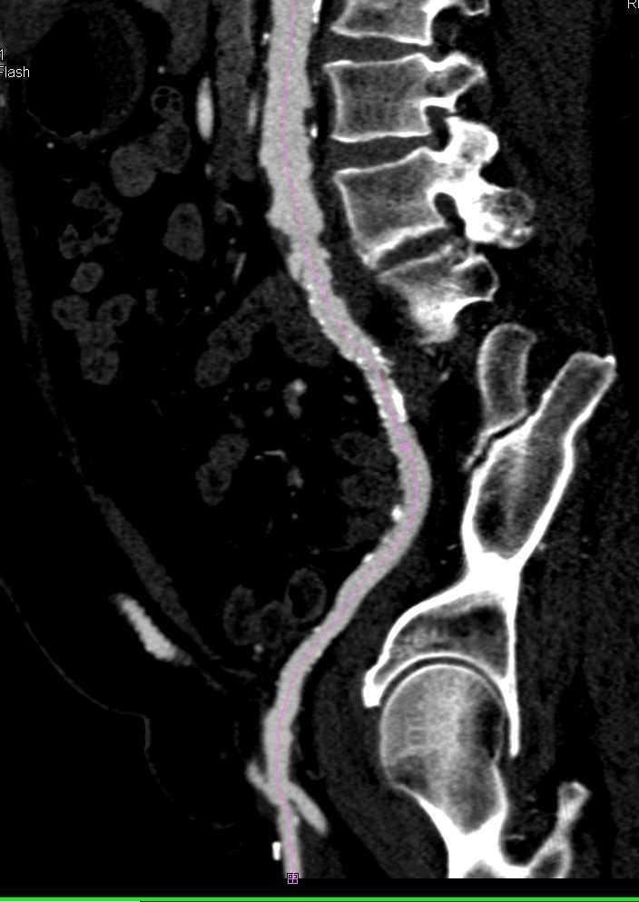 Fem-Fem Bypass - CTisus CT Scanning