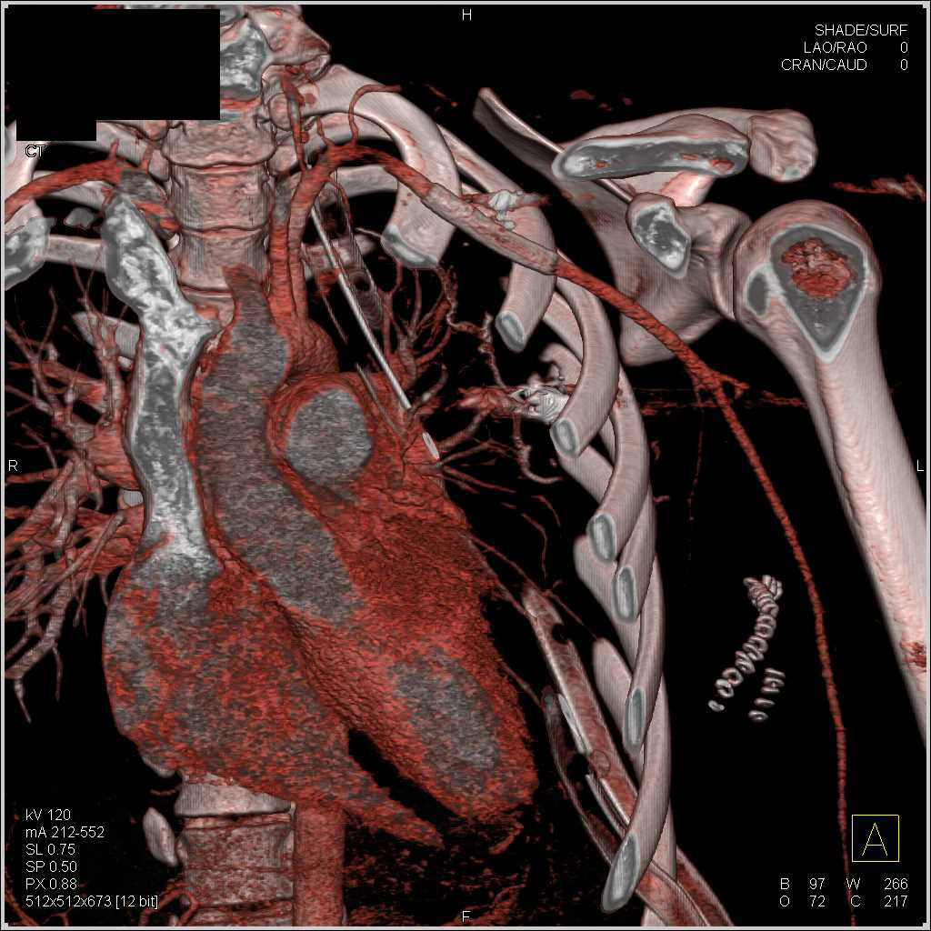 Patent Stent in Left Axillary Artery - CTisus CT Scanning