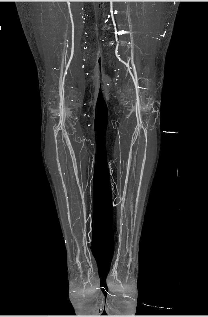 Vascular Bypass Grafts on Runoff Study - CTisus CT Scanning