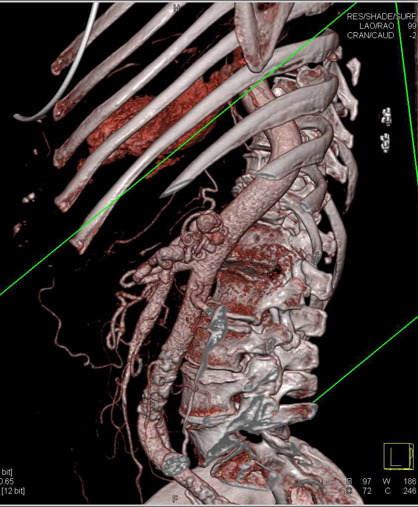 Ehlers Danlos Syndrome - CTisus CT Scanning