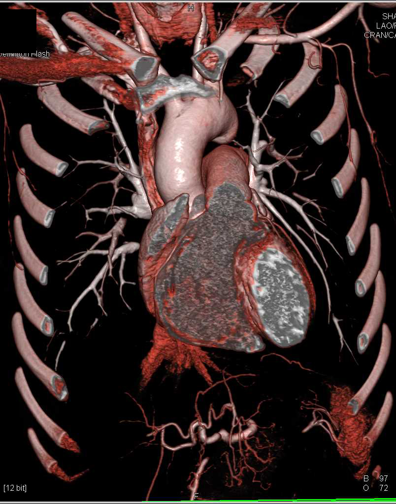Aneurysm and Ulceration Descending Thoracic Aorta - CTisus CT Scanning