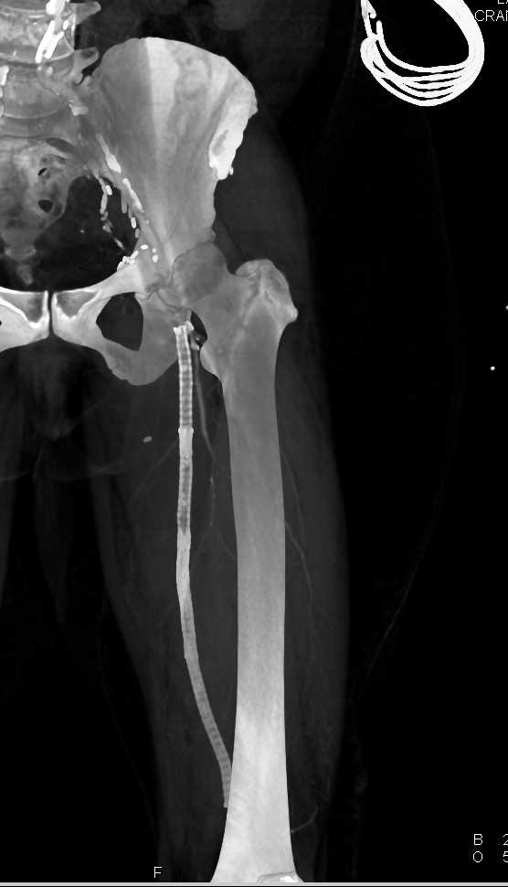 Occluded Left Femoral Artery with Stent Graft - CTisus CT Scanning