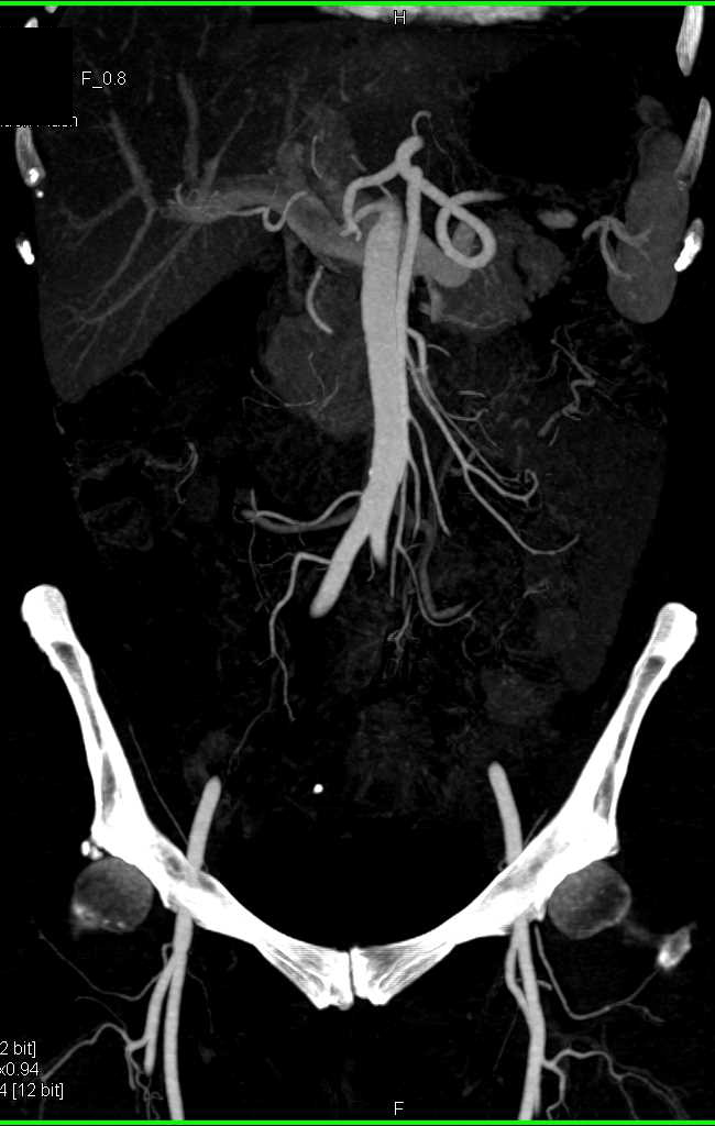 Takayasu's Aortitis Involves Left Subclavian Artery and Other Branch Vessels - CTisus CT Scanning