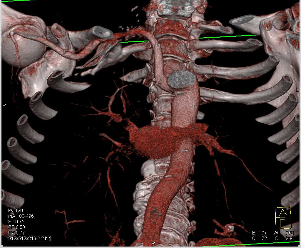 Focal Aneurysm of the Right Axillary Artery - CTisus CT Scanning