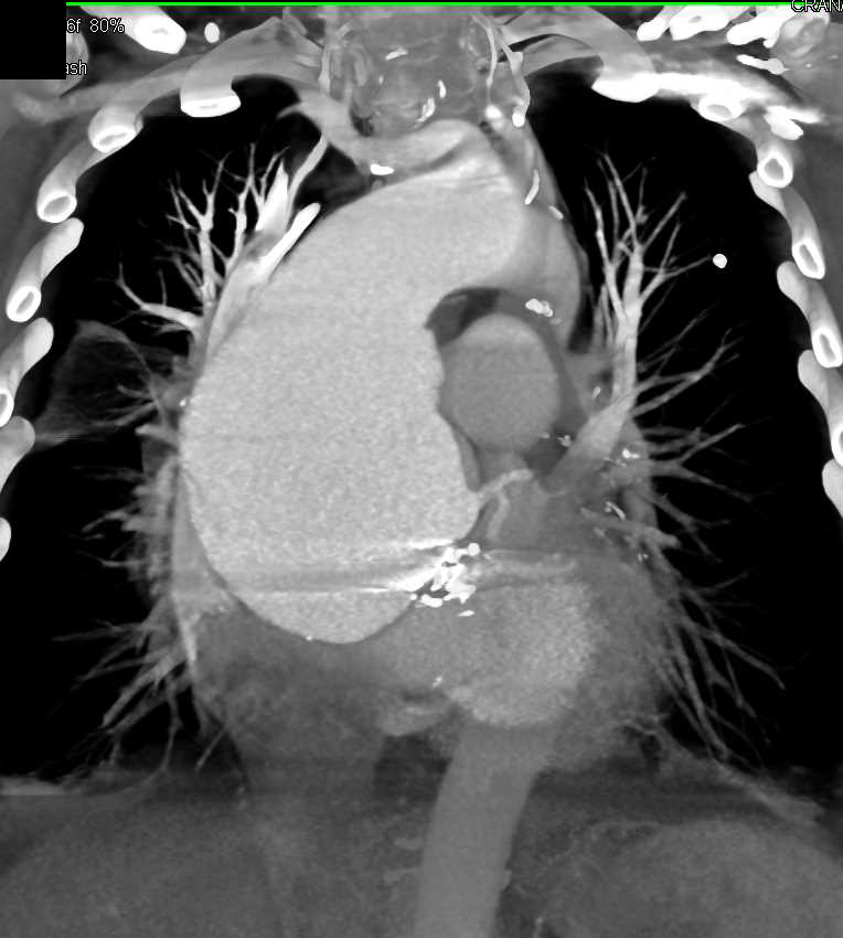 Massive Aneurysm Aortic Root - CTisus CT Scanning