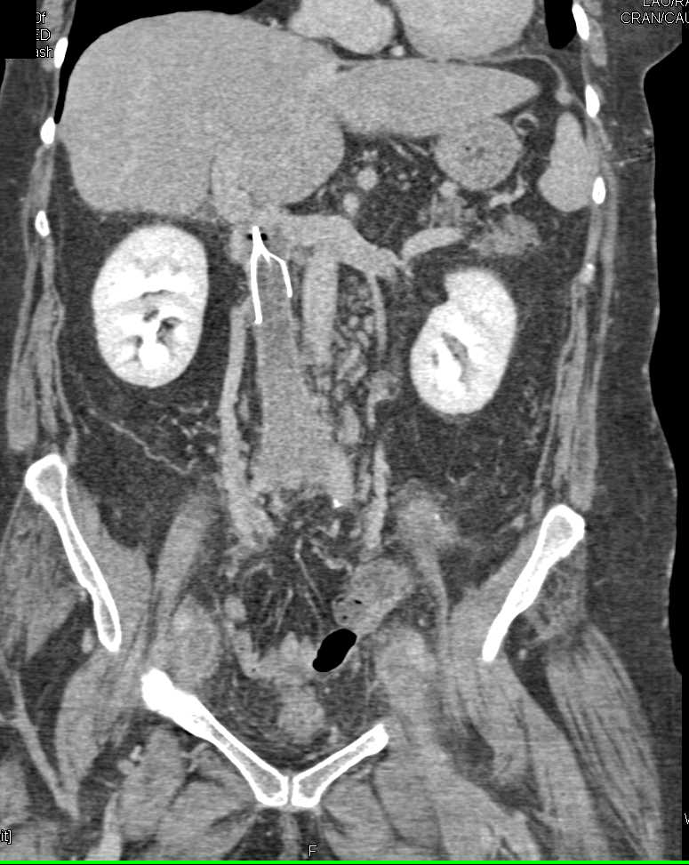 IVC Clot with IVC Stent in Place - CTisus CT Scanning