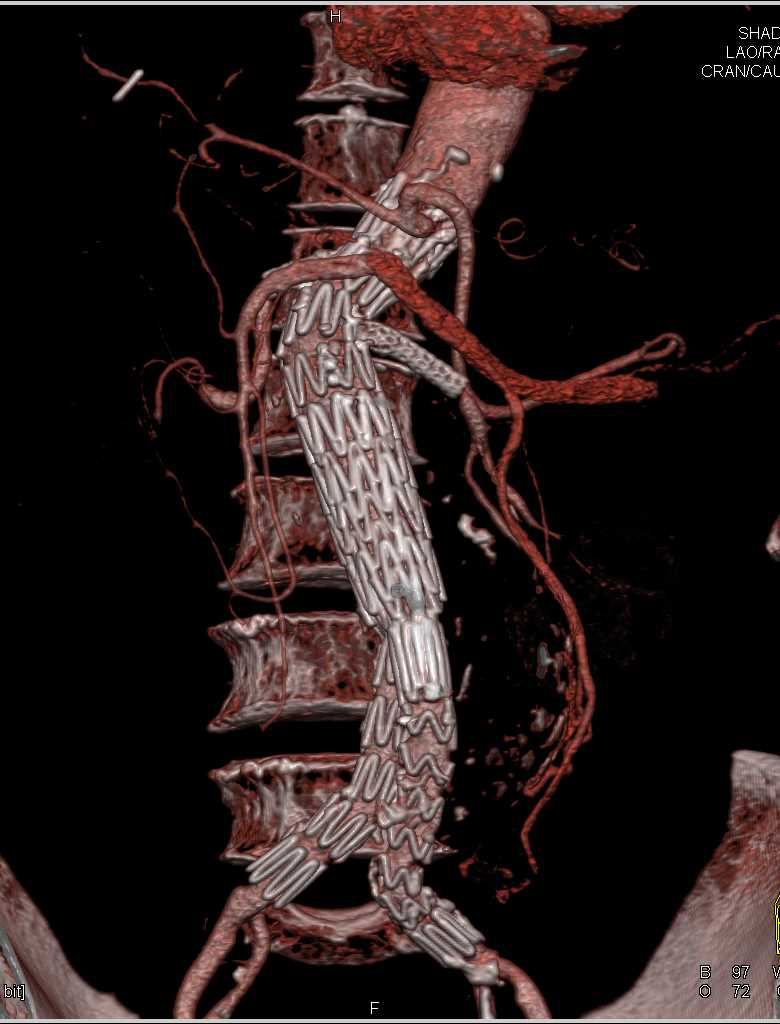 Evaluation of the Endovascular Stent - CTisus CT Scanning