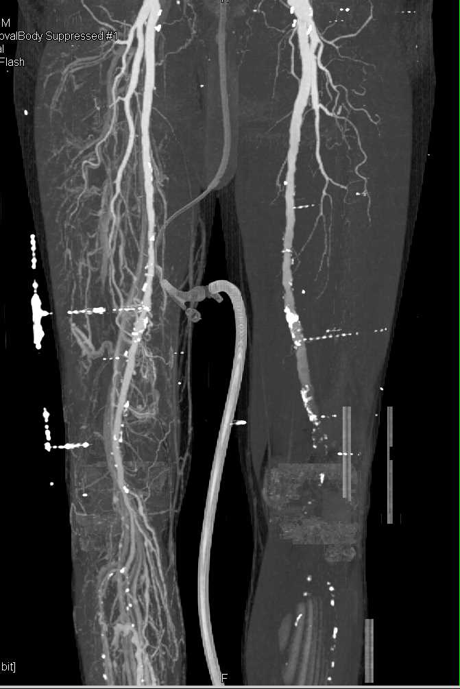 Fem-Fem Bypass Graft with Right Iliac Artery Occlusion and PVD - CTisus CT Scanning
