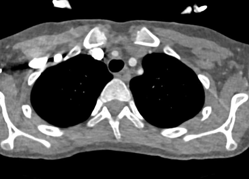 Takayasus Aortitis Involve the Arch Vessels - CTisus CT Scanning