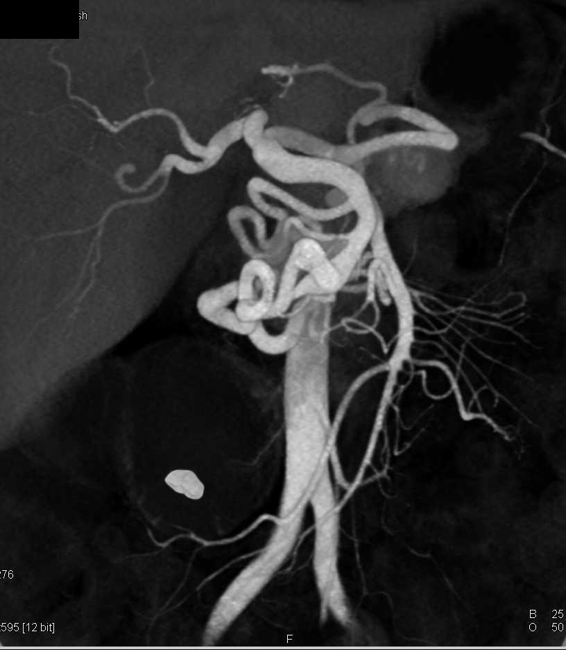 Stenosis Celiac Artery due to Median Arcuate Ligament Compression with Extensive Collaterals - CTisus CT Scanning