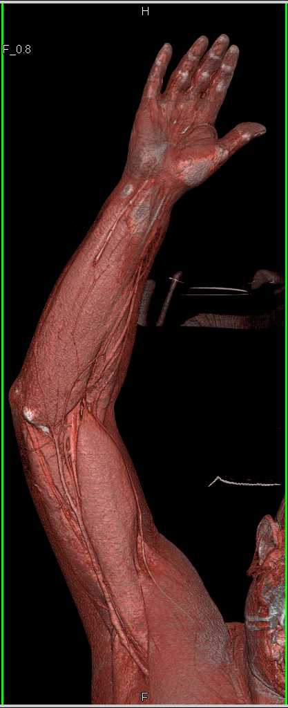 Occluded Left Radial Artery - CTisus CT Scanning