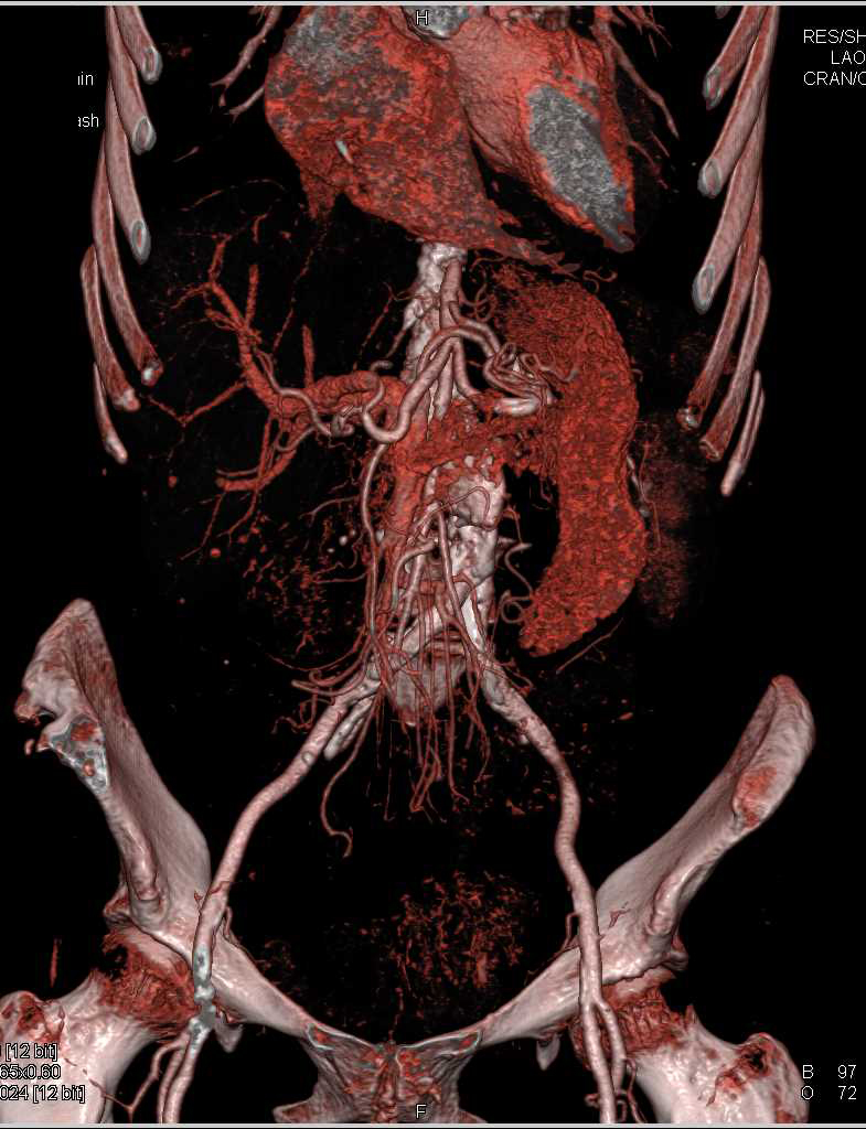 PE and Leaking Abdominal Aortic Aneurysm - CTisus CT Scanning