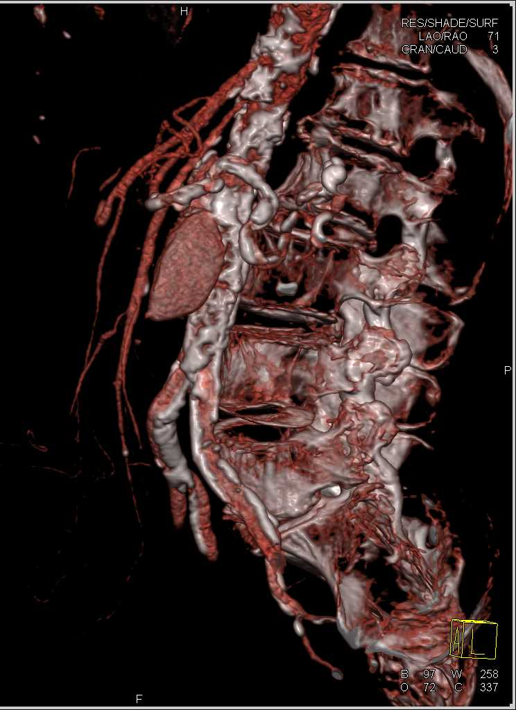 PE and Leaking Abdominal Aortic Aneurysm - CTisus CT Scanning