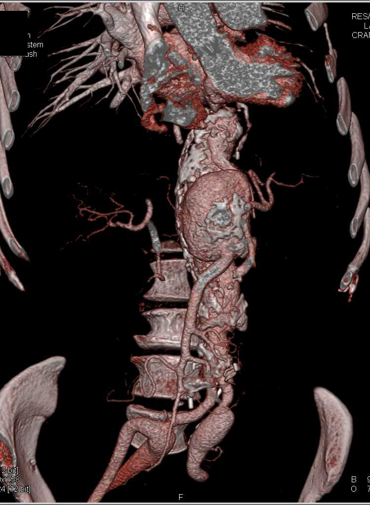 Mycotic Aneurysm Near SMA - CTisus CT Scanning