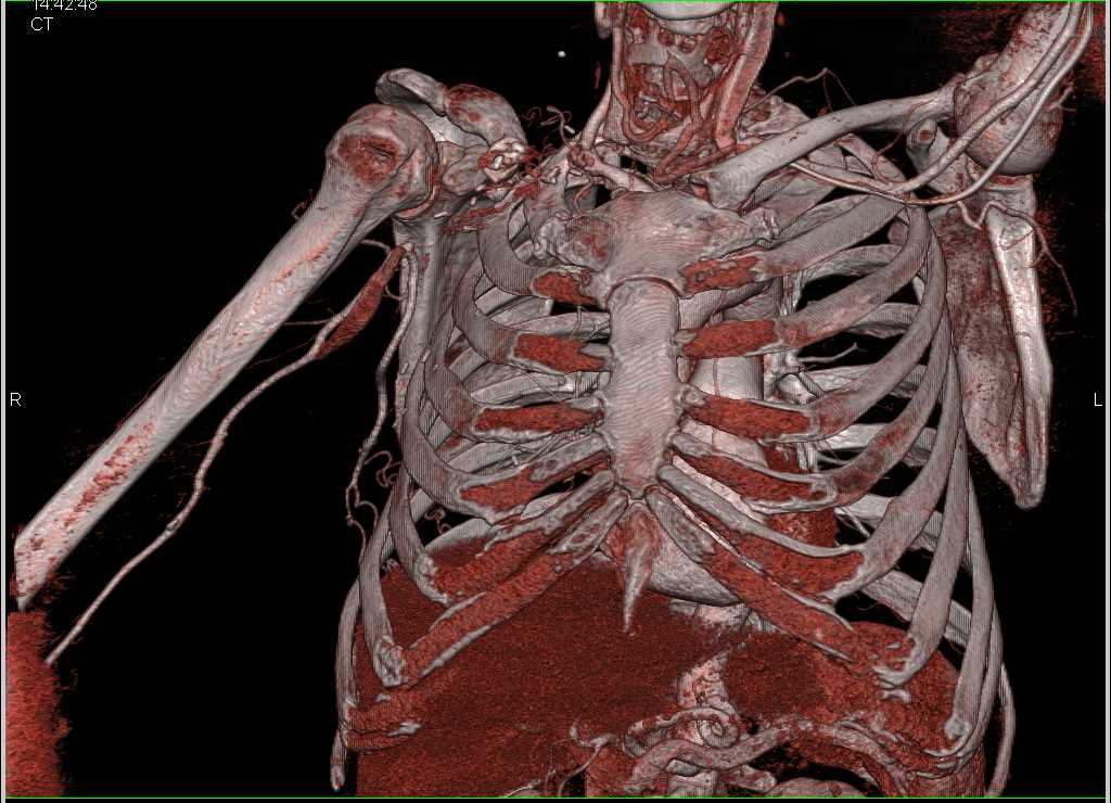 Occluded Right Axillary Artery - CTisus CT Scanning