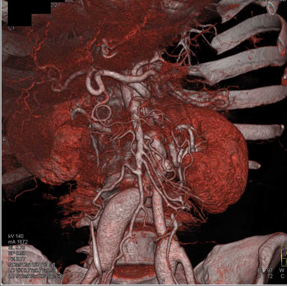 Iliac Artery Aneurysms - CTisus CT Scanning