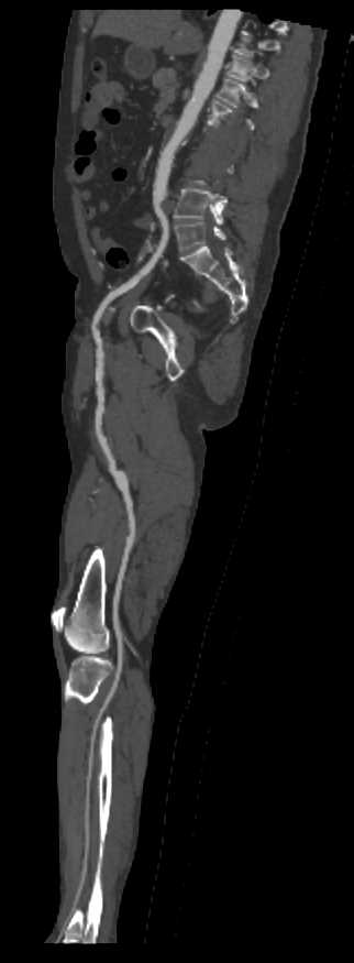 BKA with Occlude Flow to the Right - CTisus CT Scanning