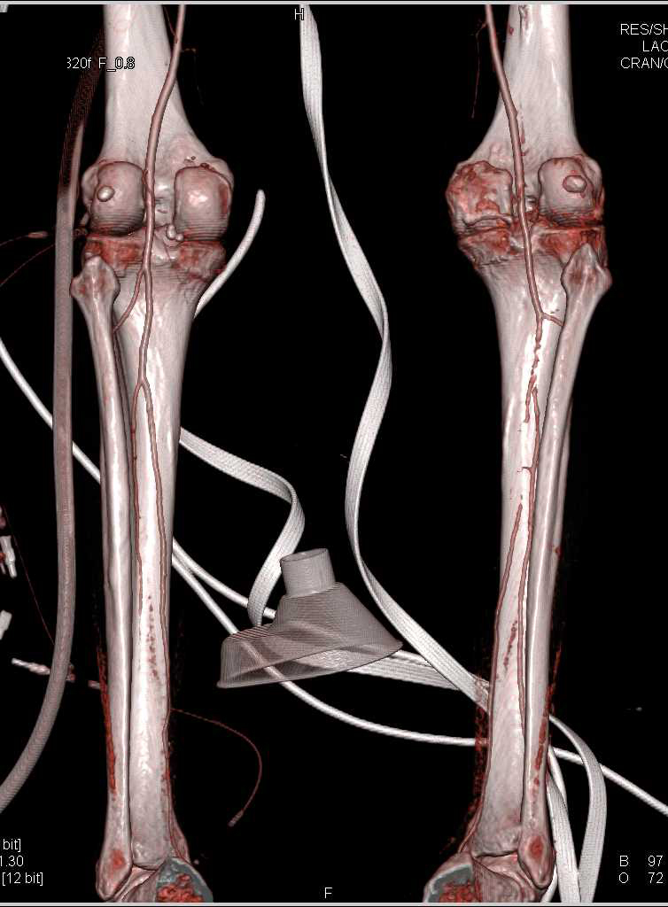 Peripheral Vascular Disease (PVD) on Runoff Study - CTisus CT Scanning