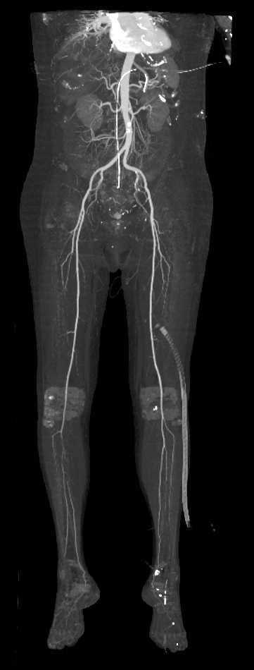 Peripheral Vascular Disease (PVD) on Runoff Study - CTisus CT Scan
