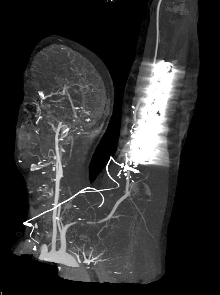CTA Shows Patent Brachial Artery Despite Hardware in Place - CTisus CT Scanning