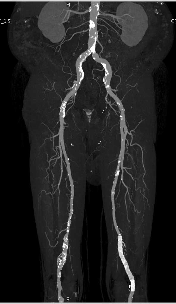 Right Popliteal Arteryl Aneurysm and Stent in Left Popliteal Artery - CTisus CT Scanning