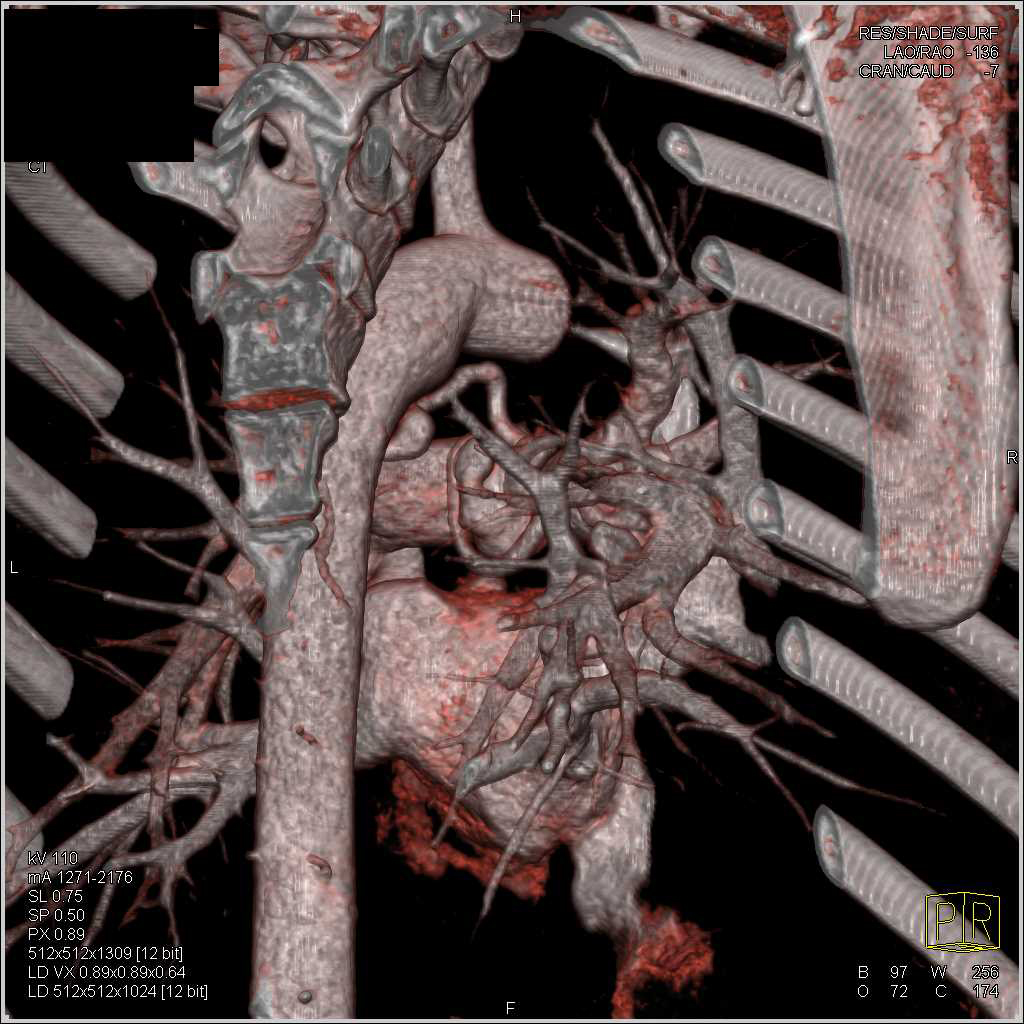 Dilated Bronchial Arteries and Bronchial Artery Aneurysm - CTisus CT Scan