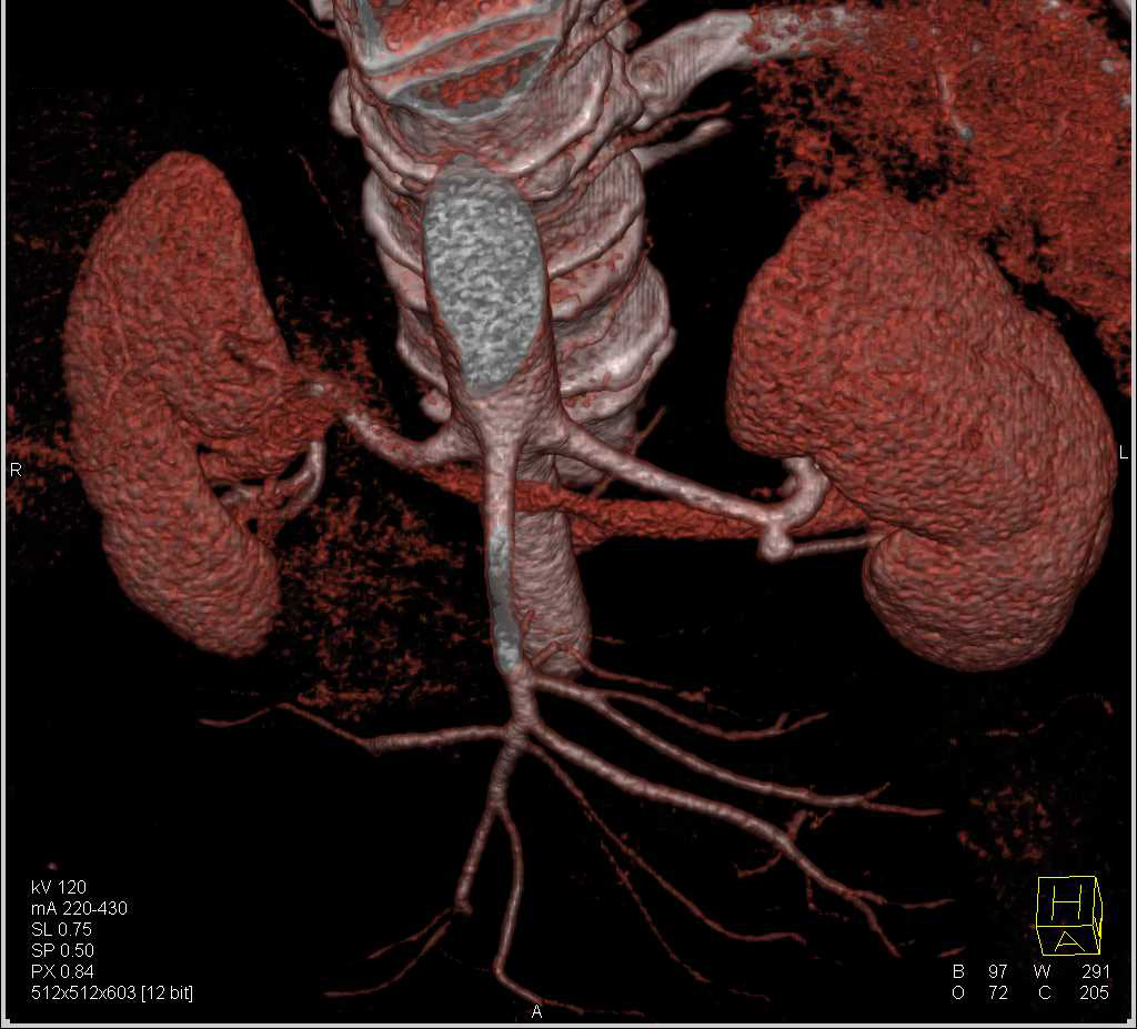 Left Renal Artery Aneurysm and Incidental Left Adrenal Adenoma - CTisus CT Scan