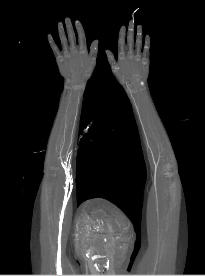 Occluded Left Radial Artery near the Origin - CTisus CT Scan