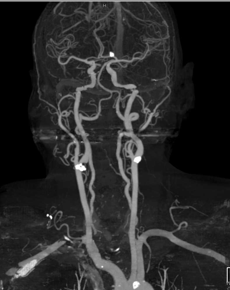 Plaque on the Carotid Artery - CTisus CT Scan