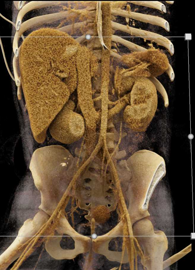 Retroaortic Left Renal Vein - CTisus CT Scan
