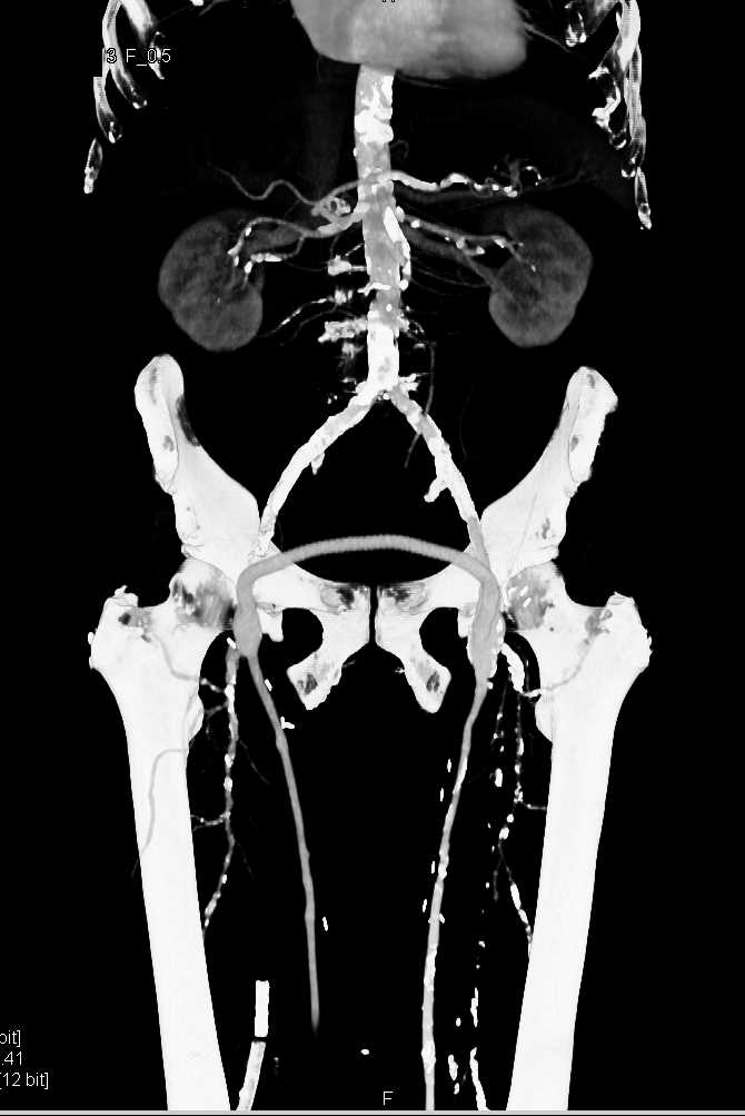 Peripheral Vascular Disease (PVD) on CTA with Bilateral Fem-Popliteal Bypasses - CTisus CT Scan